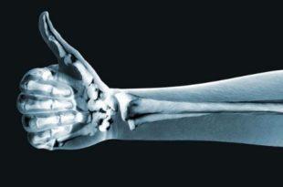 кто открыл рентгеновские лучи